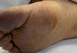 Cerrahpaşada coronavirüs hastalarının deri bulguları incelendi İşte sonuç...