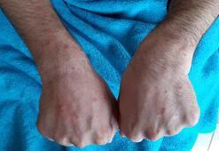 Covid-19 hastalarının deri bulguları incelendi Kurdeşen, kızarıklık, kaşıntı belirti değil