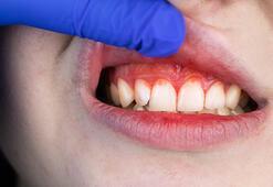 Diş fırçalarken diş etlerimiz neden kanar
