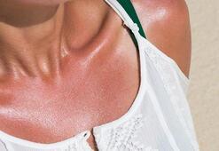 Yüz ve kollarınızı günde 30 dakika güneşe bırakın
