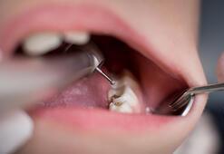 Düzenli egzersiz yapmak dişlerinizi çürümeden korur mu