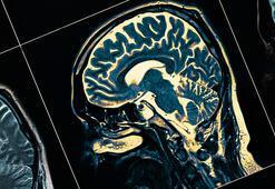 2040a kadar Parkinson hastası sayısı 18 milyona ulaşabilir