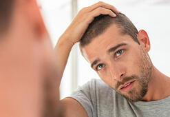 Erkeklerin saçını döken o etken açıklandı