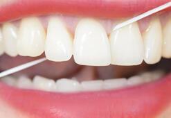 Diş İpi Ne İşe Yarar, Nasıl Kullanılır İşte Diş İpinin Doğru Kullanımı