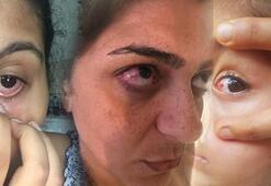 Tatilcilere kırmızı göz hastalığı uyarısı Denize girmek daha güvenli