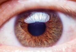 Kırmızı göz hastalığı nedir Konjonktivit kırmızı göz hastalığı belirtileri nelerdir
