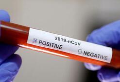 Potansiyel Kovid-19 aşısıçıkmadan kapış kapış
