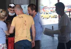 İzmirde acemi kasaplar acile koştu
