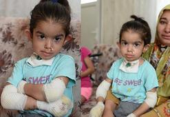 Kelebek hastası 4 yaşındaki Büşranın ailesi, tedavi için yardım bekliyor