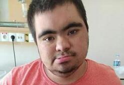 20 yaşındaki down sendromlu Muhammed, corona virüse yenik düştü