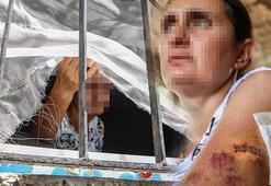 Uzaklaştırma kararı aldırdığı kocası bıçakladı Tutuklanması için ölmem mi gerekiyor