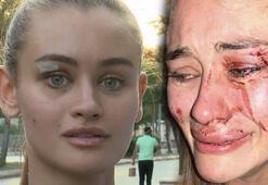 Çeşmede dövüldüğünü öne süren Ukraynalı Model Daria Kyryliuk savcılıkta ifade verdi