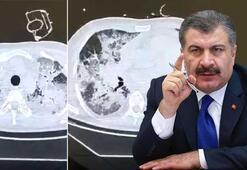 Sağlık Bakanı Fahrettin Kocadan peş peşe paylaşımlar