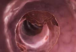 Kolon kanserinde karaciğer metastazı riskine dikkat