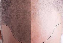 Saç ekimi sonrası dikkat edilmesi gereken 12 madde