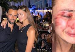 Ukraynalı model Daria Kyryliukı kim darbetti Görgü tanıkları CNN TÜRKte anlattı
