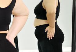 Obeziteye karşı mide balonu çözüm olur mu