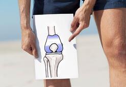 Diz protezi ameliyatını kimler olabilir - Diz protezi ömrü ne kadardır