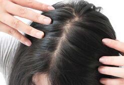 Profesör açıkladı Saç dökülmesi corona virüsle mi ilişkili