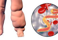 Lenf bezleri tıkanırsa bu hastalık ortaya çıkıyor - Fil hastalığı (lenfödem) nedir