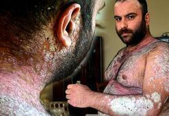 Sedef hastalığı nedeniyle vücudu pullanan Murat, sağlığına kavuştu