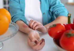 Yerken dikkat Bu besinler alerji yapabilir