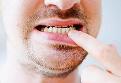 Diş eti çekilmesi neden kaynaklanır Geçirmek için...