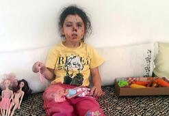 Konvoy yasağına rağmen havaya ateş açıldı Küçük çocuk yaralandı