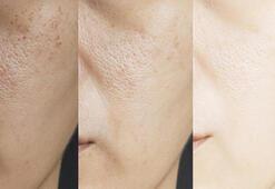 Soğuk duş almanın cildinizde yaratacağı 5 şaşırtıcı etki