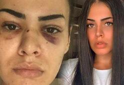 Bostancıda kadını darp eden 2 şüpheli yakalandı