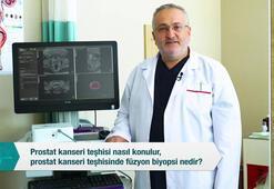 Prostat kanseri teşhisi nasıl konulur, prostat kanseri teşhisine füzyon biyopsi nedir