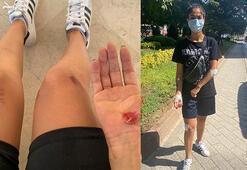 Maltepede başıboş köpekler genç kadına saldırdı