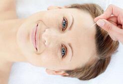 Akupunktur botoks etkisi yaratıyor Kırışıklık, sarkma...