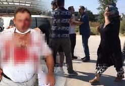 Bursada baba oğul kavgasında kan aktı