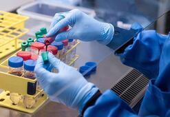 Yeniden başlıyor Oxford corona aşısıyla ilgili sıcak gelişmeyi duyurdu