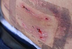 Pitbull dehşeti 40 dikiş atıldı