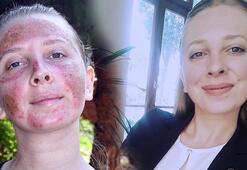 Cilt bakımı yaptıran genç kızın yüzünde 2nci derece yanık oluştu