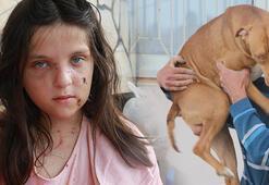Tuğbaya saldıran pitbull cinsi köpekler, evin bahçesinde tutulmaya devam ediyor