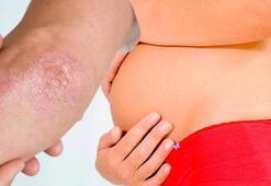 Sedef hastalığı hamilelik sürecini nasıl etkiler
