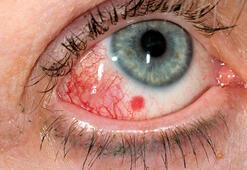 Sonbaharda görülen kırmızı göz hastalığından korunmanın 13 yolu