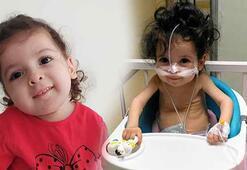 SMA hastası minik Öykünün tedavisi için 47 gün kaldı