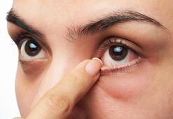 Normal Göz Tansiyonu Değeri Kaç Olmalıdır Kaç Mmhg Normal Sayılır
