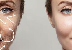 Ameliyatsız yüz kırışıklıklarından kurtulmak mümkün mü