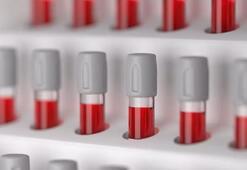 E nabız nedir, e nabıza nasıl giriş yapılır E-Nabız ile girip aşısı sorgulama