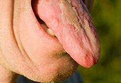 Vitamin eksikliği bu hale getiriyor Dilinizin üzerinde...