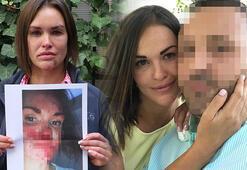 Güzellik uzmanı Rus eşine dehşeti yaşattı