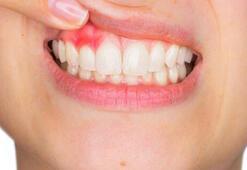 Diş etindeki ödem ve kızarıklık bu hastalığın habercisi