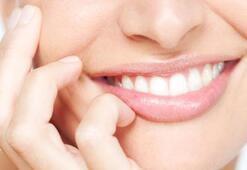 Diş sıkma (Bruksizm) hastalığı nedir Diş sıkma hastalığı nasıl geçer