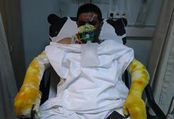 Samsunda feci olay Ailesini kurtardı, kendisi yandı