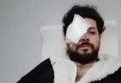 Şişli'de silahlı kavgada gözünü kaybeden genç şarkıcı dehşet anlarını anlattı